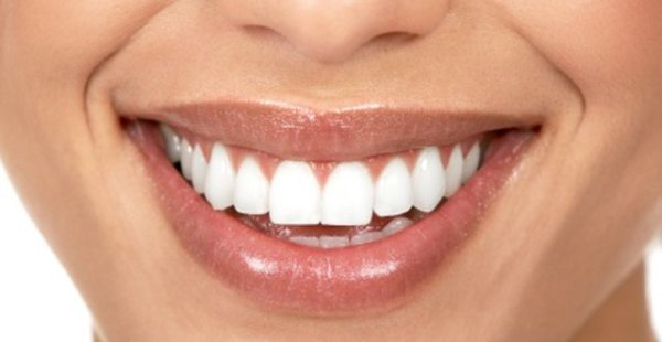 Teeth_whitening_t670